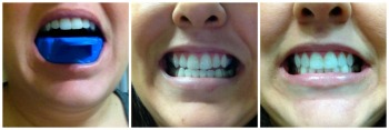 smile brilliant review Smile Brilliant Review and Teeth Whitening Kit Giveaway #WinGiveaways